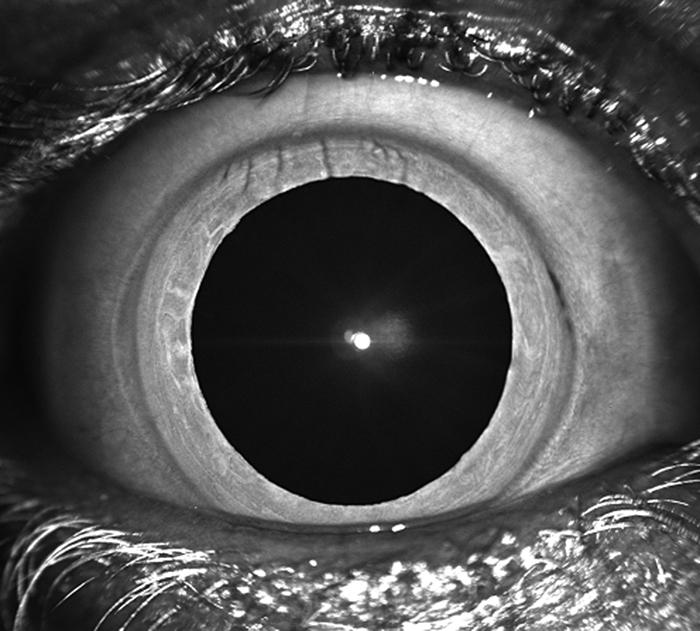 BWJones wide eye
