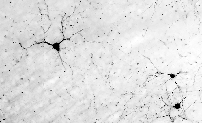 Neurons in the brain