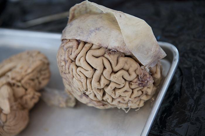 Brain and Dura_