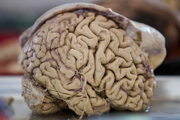 Human Brain_