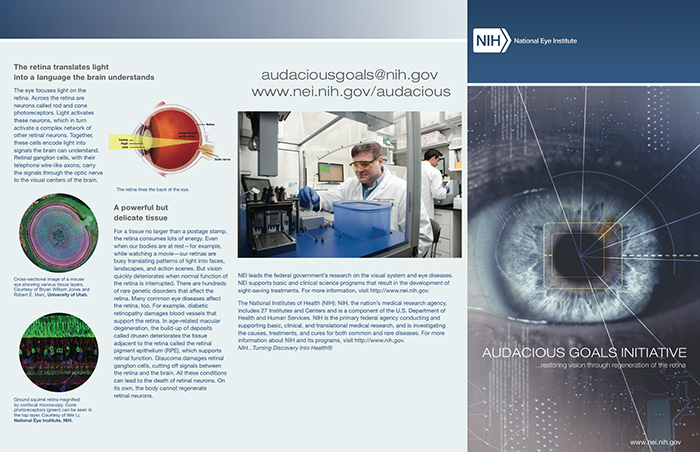 Metabolomic Eye In NIH Audacious Goals