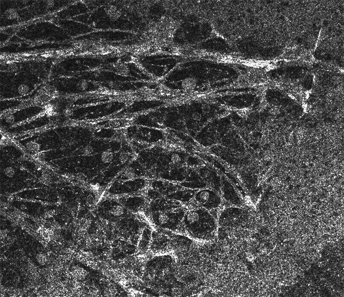 Coherent Retina