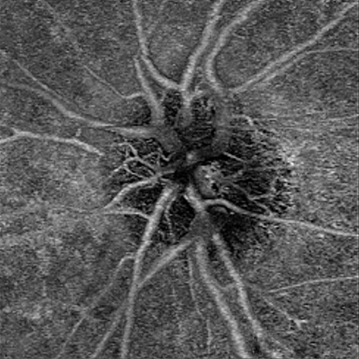 BWJones foveal vasculature