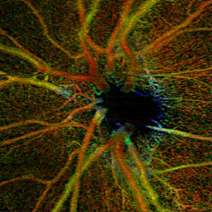 BWJones retinal vasculature